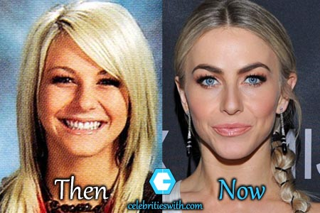 Julianne Hough Facelift