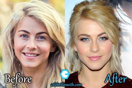 julianne hough plastic surgery facelift botox rumor