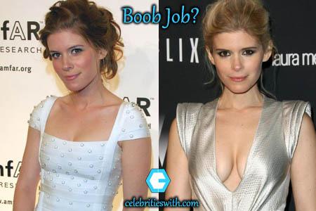 Kate Mara Boob Job