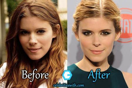 Kate Mara Plastic Surgery