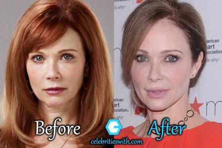 Lauren Holly Plastic Surgery