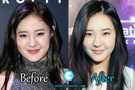 Megan Lee Plastic Surgery