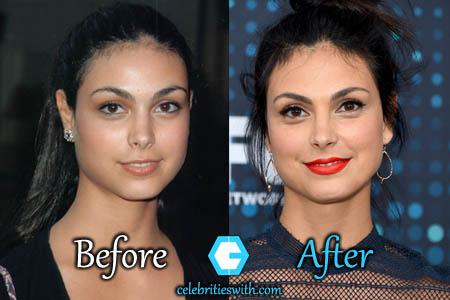 Morena Baccarin Plastic Surgery