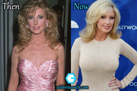 Morgan Fairchild Boob Job