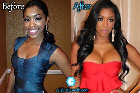 Porsha Williams Plastic Surgery