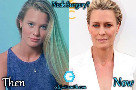 Robin Wright Neck Surgery