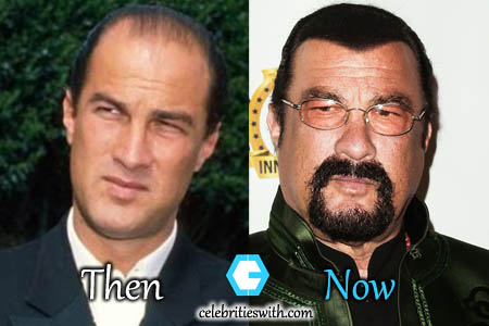Steven Seagal Plastic Surgery Hair Transplant Before And