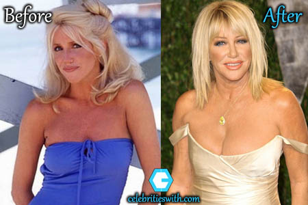 Suzanne Somers Boob Job