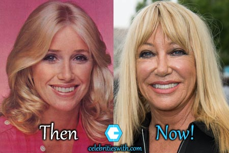 Suzanne Somers Plastic Surgery, Facelift, Boob Job Before ...