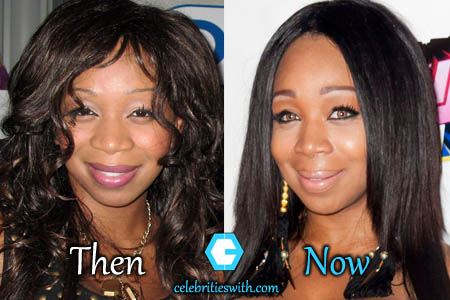 Tiffany Pollard Plastic Surgery