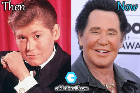 Wayne Newton Facelift, Botox Photo