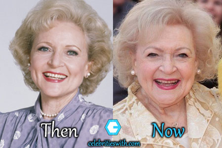 Betty White Eyelid Surgery, Facelift
