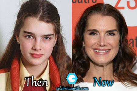 Brooke Shields Facelift