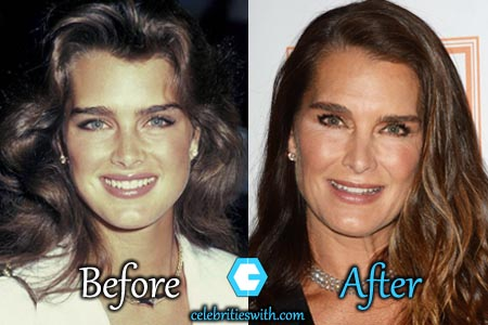 Brooke Shields Plastic Surgery Botox Facelift Before