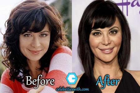 Catherine Bell Plastic Surgery