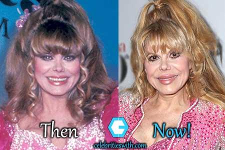 Charo Plastic Surgery