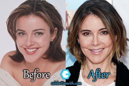 Christa Miller Plastic Surgery