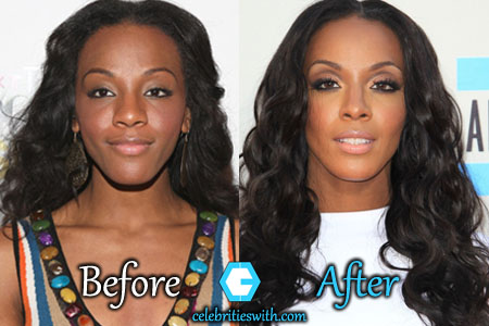 Dawn Richard Nose Job
