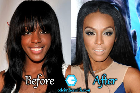 Dawn Richard Plastic Surgery