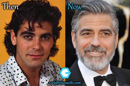 George Clooney Eyelid Surgery