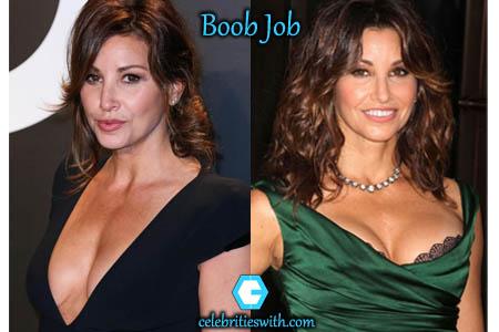 Gina Gershon Boob Job