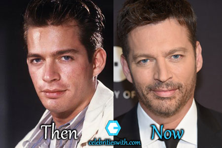 Harry Connick Jr Jaw