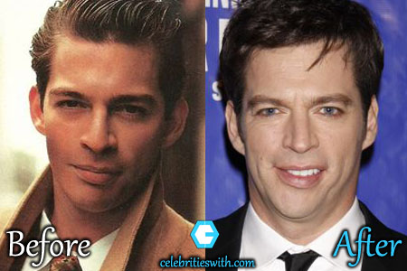 Harry Connick Jr Plastic Surgery