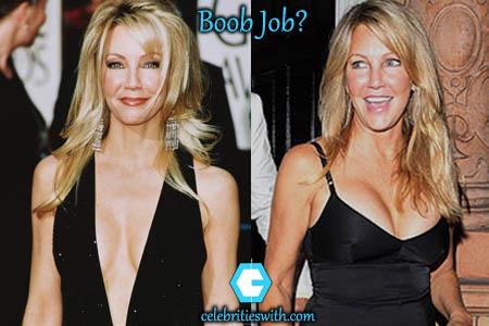 Heather Locklear Boob Job