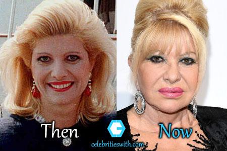 Ivana Trump Facelift