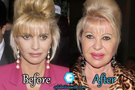 Ivana Trump Plastic Surgery