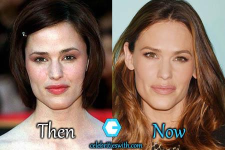 Jennifer Garner Lips Injection