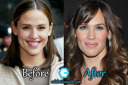 Jennifer Garner Plastic Surgery