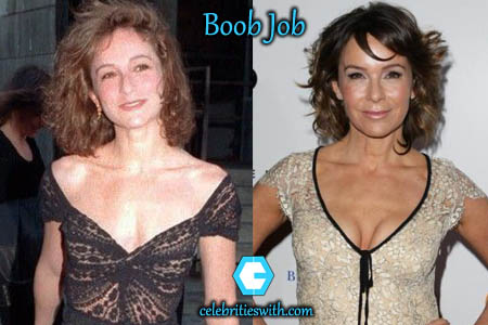 Jennifer Grey Boobs Job
