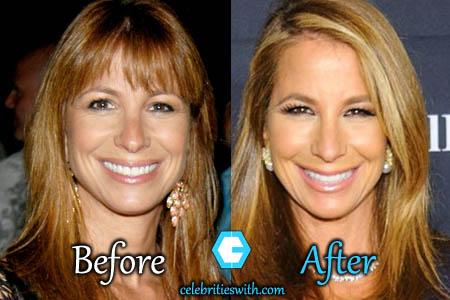 Jill Zarin Plastic Surgery