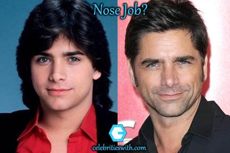 John Stamos Nose Job