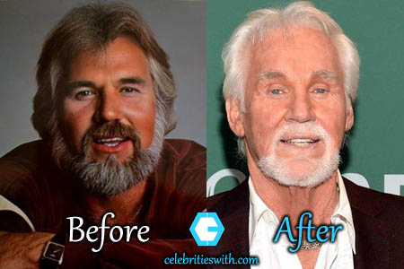 Kenny Rogers Plastic Surgery Botox Facelift Before