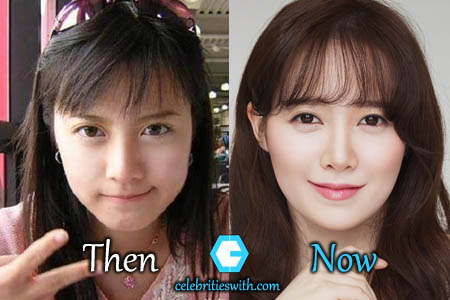 Ku Hye Sun Plastic Surgery Picture