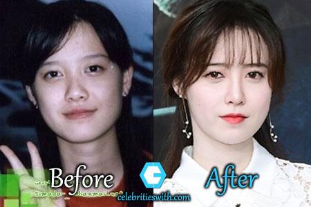 Ku Hye Sun Plastic Surgery Eyelid Surgery Before And