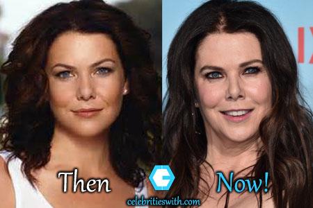 Lauren Graham Botox