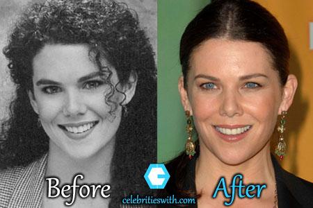 Lauren Graham Plastic Surgery