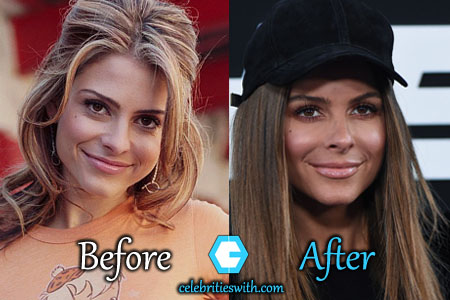 Maria Menounos Plastic Surgery