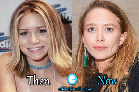 Mary Kate Olsen Nose Job