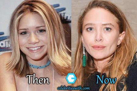 Mary Kate Olsen Nose Job