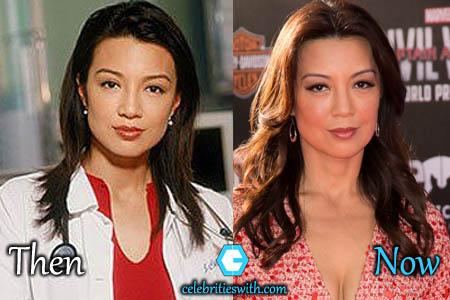 Ming Na Wen Eyelid Surgery