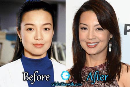 Ming Na Wen Plastic Surgery