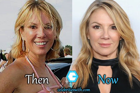 Ramona Singer Nose Job