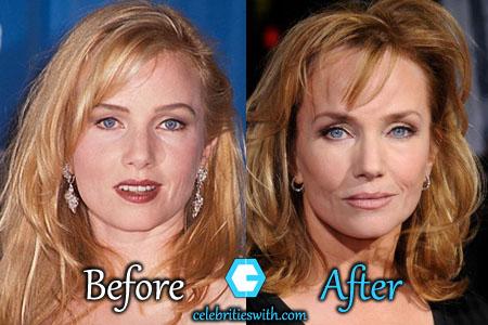 Rebecca De Mornay Plastic Surgery