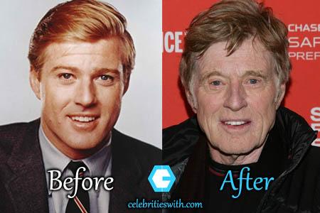 Robert Redford Plastic Surgery
