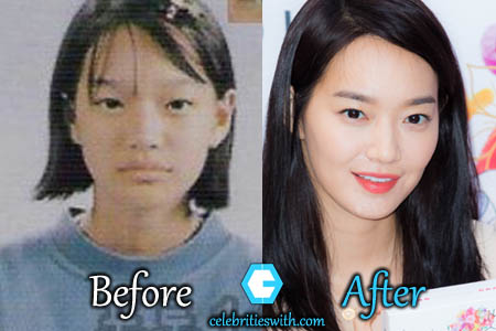 Shin Min Ah Plastic Surgery