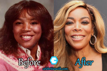 Wendy Williams Plastic Surgery